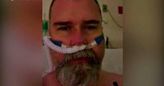 """Covid negazionista in lacrime dal letto d'ospedale: """"Riesco a malapena a respirare. Non essere come me, indossa una maschera """"- Video"""
