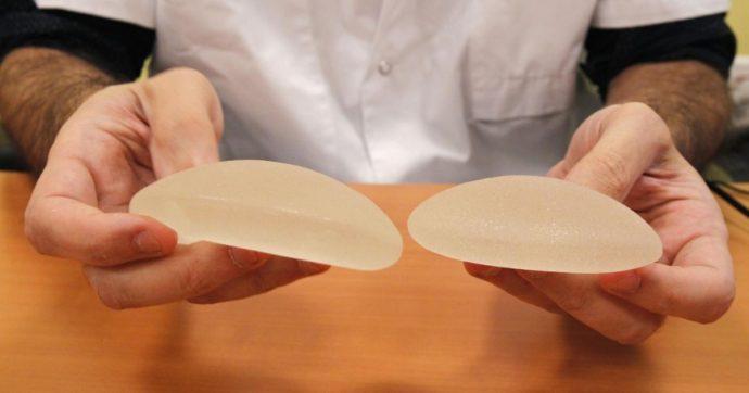Le protesi mammarie sono sicure. Ecco tutto quello che c'è da sapere per evitare ansie