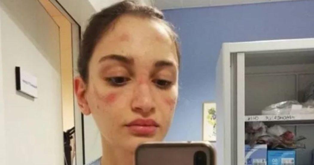Il 10 marzo, Alessia Bonari, infermiera in un ospedale di Milano, posta una foto con i segni procurati da mascherina e visiera