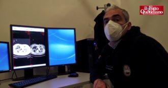 """Nelle terapie intensive di Bari: """"Ecco come diventano i polmoni di un malato Covid. Persone non capiscono, troppa leggerezza in zona gialla"""""""
