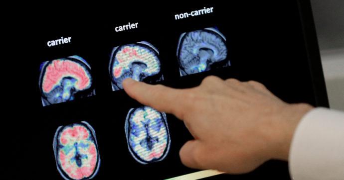 """Alzheimer, dopo 20 anni gli Usa approvano un nuovo farmaco. """"Può rallentare decorso malattia nelle prime fasi"""""""