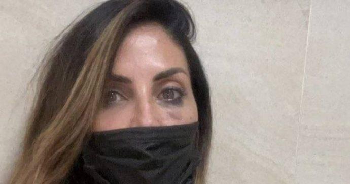 """Guendalina Tavassi pubblica una foto con un occhio tumefatto. La figlia: """"Come si fa a ridurre mia madre così? Che schifo. Vergogna"""""""
